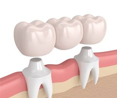 dental bridge 3D rendering