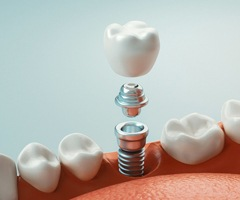 Crown, abutment, implant