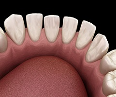 Digital image of a bottom row of teeth that have significant spacing between them and need Invisalign in Charlottesville