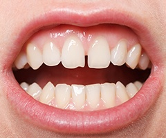A person with their mouth open and exposing their top row of teeth and the gap between their two front teeth