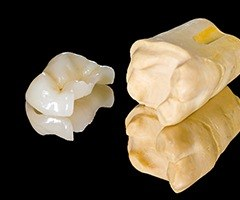 Model tooth with onlay restoration