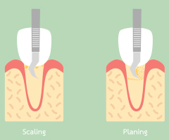 Animation of scaling and root planing treatment