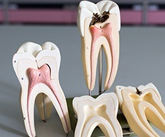Models of inside of the tooth